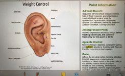 Actie nu bij Tal Tao,……  Afvallen met oor acupunctuur.