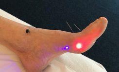 Red laser, infra rood en Blue laser, snel en effectief  bij Pijnklachten