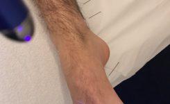 Laser acupunctuur